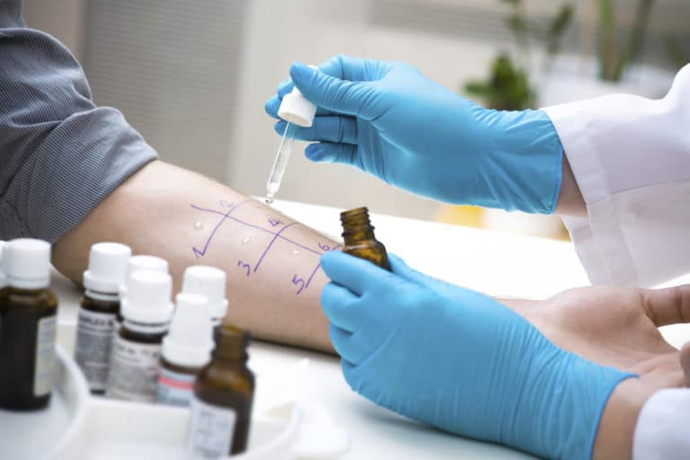 Allergist administering a skin test
